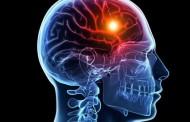 Medidas para reducir el riesgo de un infarto cerebral