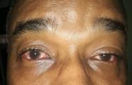 República Dominicana reporta más de 93.000 casos de conjuntivitis este año