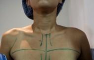 NY advierte sobre infección en cirugías estéticas RD; Salud Pública investiga