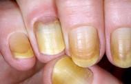 Síndrome de uñas amarillas