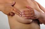 El cáncer de mama:pronóstico