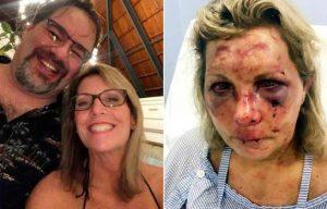Turista que dice haber sido golpeada en la RD demanda a un hotel de Punta Cana