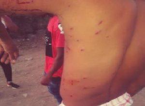 BARAHONA: Varios campesinos heridos en protesta por falta de agua