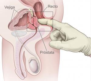 No tiene que ser aterrador un diagnóstico de cáncer de próstata