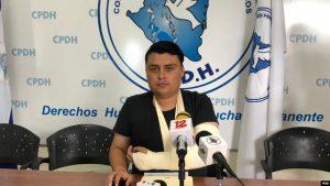 NICARAGUA: Denuncian aumentan agresiones a la libertad de prensa