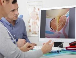 Sugieren aumentar campaña prevención cáncer de próstata