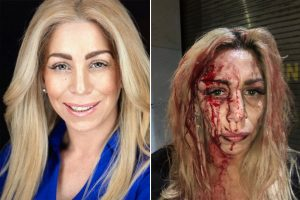 Racistas desfiguran rostro de actriz y modelo latina en bar de Midtown