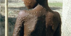 ¿Qué sabe usted de la viruela?; vacunación terminó en el 1970