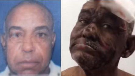 SFM: Hombre de 72 años mata otro de 56 en enfrentamiento a puñaladas