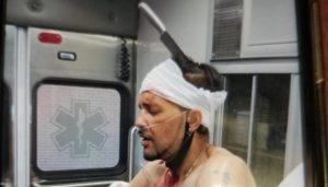 Hispano defendió a una mujer que era golpeada y fue apuñalado en la cabeza