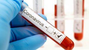 MSP dice siguen en descenso casos de coronavirus en la Rep. Dominicana