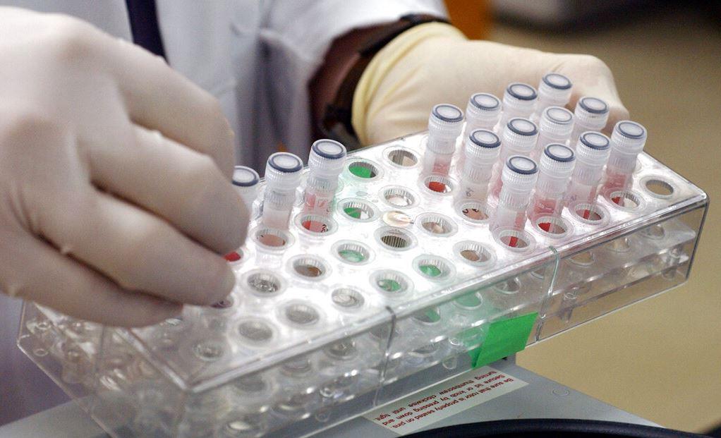 EEUU descubre caso temible «virus del mono» en hombre proveniente Nigeria