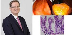 Médicos preocupados por un tipo de polípo de cáncer intestinal