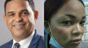 SCJ designa jueza para conocer acusación contra diputado Duarte
