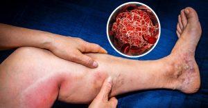 Citan incidencia de la trombosis